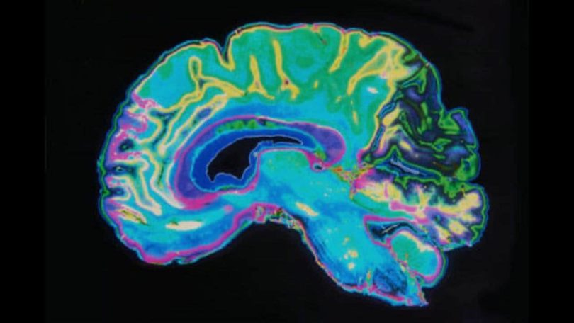 Laser beams give neuroscientists new insights about brain's inner GPS system in mice study