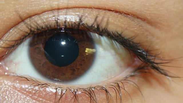 Soreness, light sensitivity and other eye problems likely to occur in COVID-19 patients, suggests study