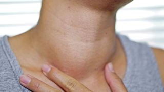 Enlarged lymph nodes after COVID-19 vaccination could be mistaken for cancer- Technology News, GadgetClock