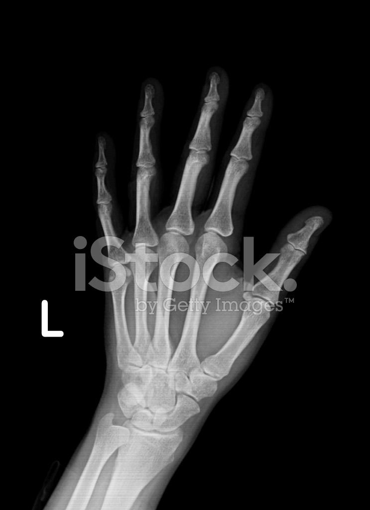 Xray Image of Left Hand and Wrist Stock Photos ...