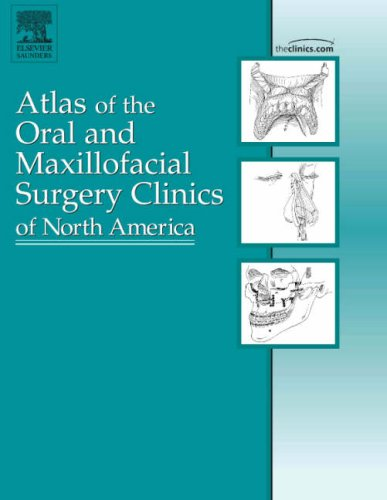 Mandibular Reconstruction, An Issue Of Atlas Of The Oral And Maxillofacial Surgery Clinics
