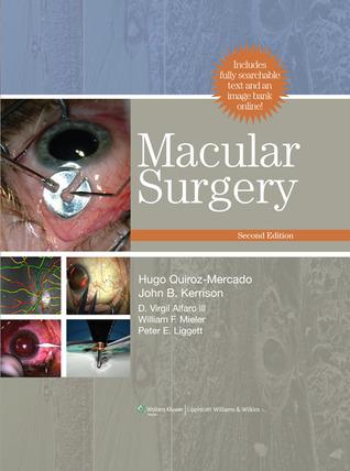 Macular Surgery