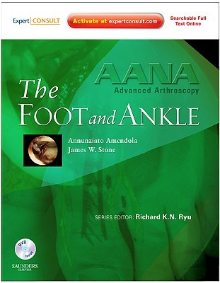 AANA Advanced Arthroscopy: The Foot and Ankle: Expert Consult: Online, Print and DVD, 1e