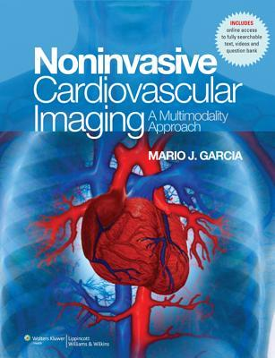 Noninvasive Cardiovascular Imaging: A Multimodality Approach