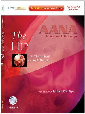 Aana Advanced Arthroscopy: The Hip E-Book: Expert Consult: Online, Print and DVD