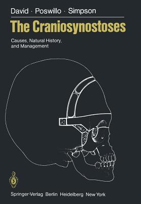 The Craniosynostoses: Causes, Natural History, and Management