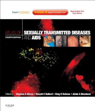Atlas of Sexually Transmitted Diseases and AIDS [With Access Code]