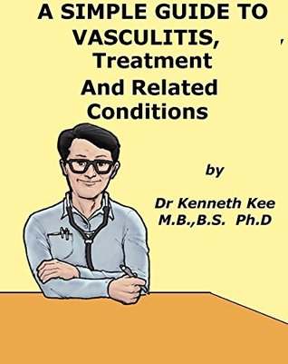 A Simple Guide to Vasculitis, Treatment and Related Diseases