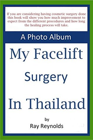 My FaceLift Surgery in Thailand: A Face lift Photo Album