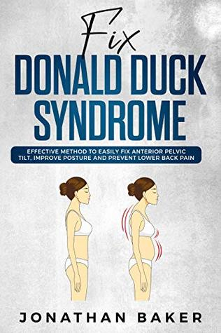 "Fix ""Donald Duck"" Syndrome: Effective Method To Easily Fix Anterior Pelvic Tilt, Improve Posture And Prevent Lower Back Pain"