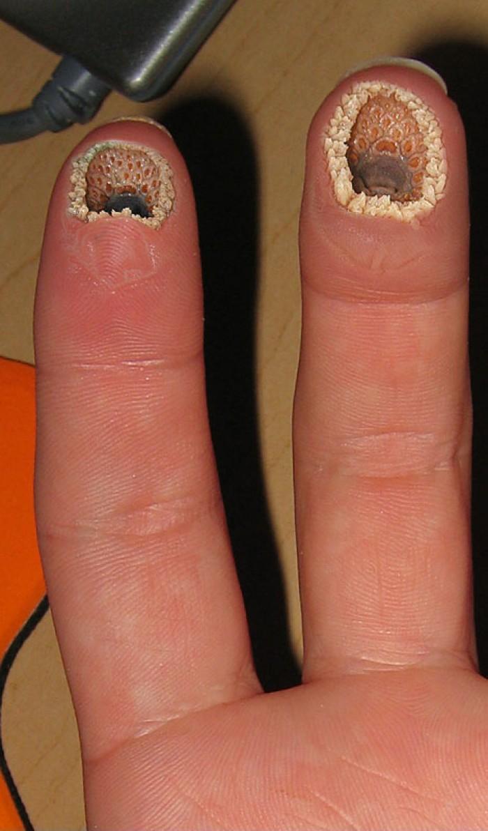 Trypophobia Feet Holes