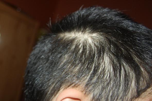 Haarausfall mit 17  ist das besorgniserregend Fotos Haare