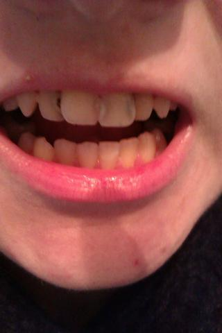 Ich brauche neue Zhne Was soll ich tun was sind die