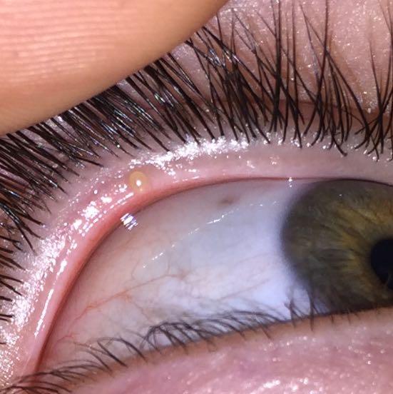 Meine Freundin hat ein Gerstenkorn Gesundheit Augen