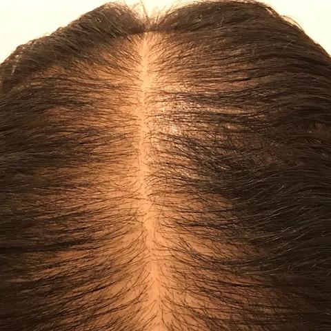Sind Das Neue Haare Oder Gebrochne Beauty Haarausfall