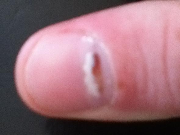 Was Ist Das Am Nagel Nägel