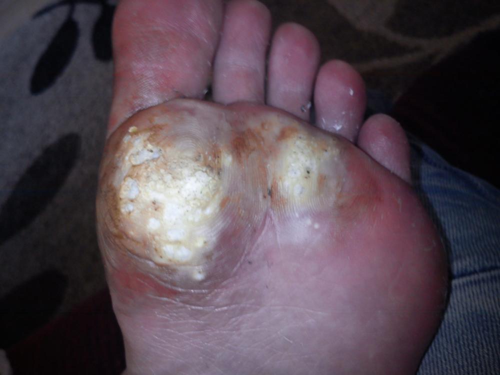 Was kann ich gegen die Schmerzen tun Vorsicht SEHR eklig Gesundheit Haut Dornwarze