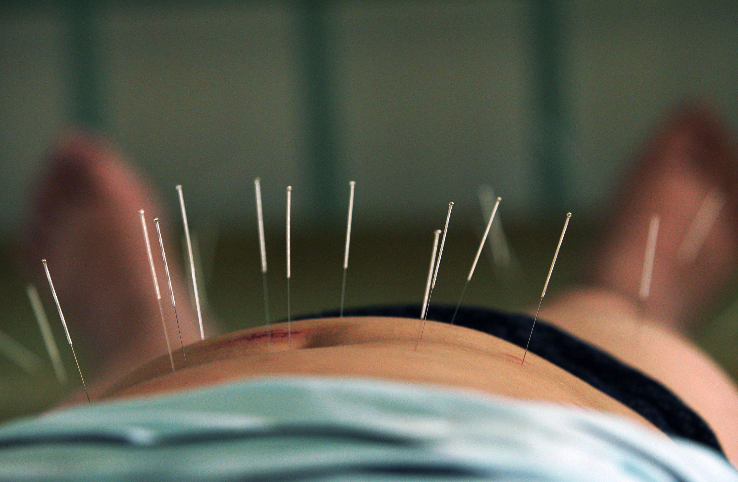 does acupuncture work for