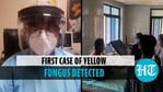 Yellow fungus case detected