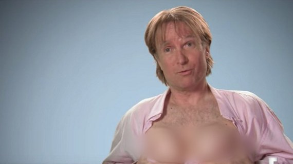 man gets breast implants