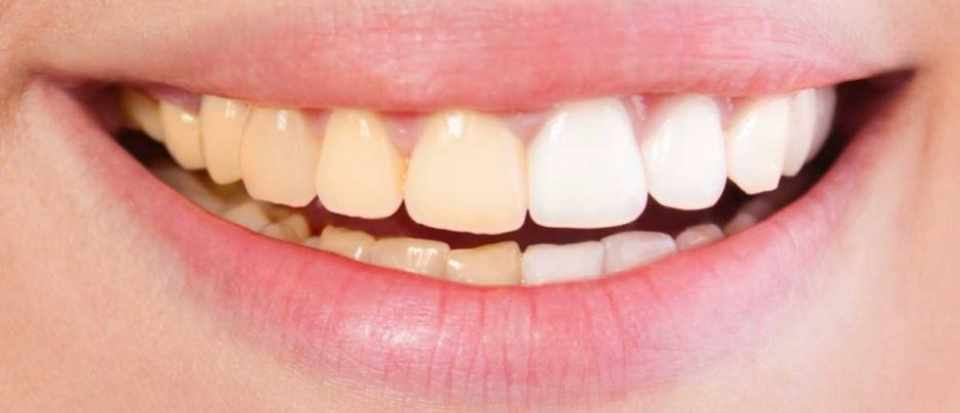 are yellow teeth stronger
