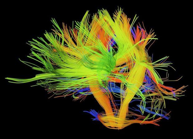 White matter fibres of the human brain © Getty Images