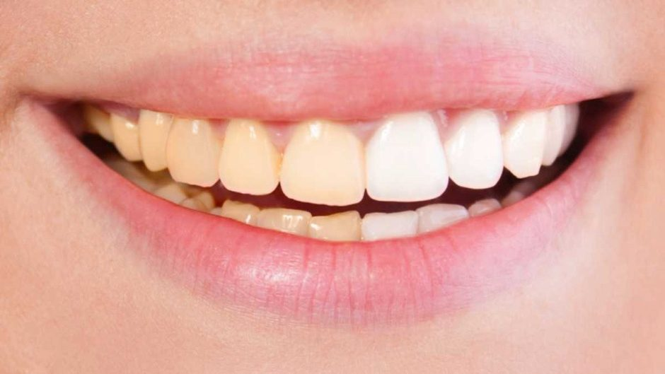 Are yellow teeth stronger also science focus bbc magazine rh sciencefocus