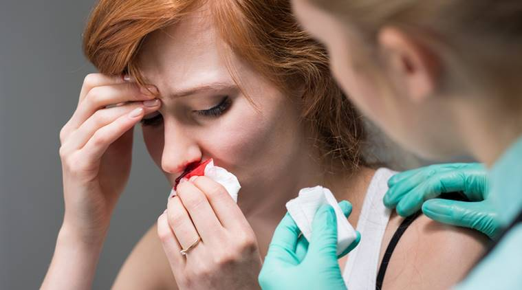 Why Do People Suffer From Nosebleed During Summers; Ways To Stop It