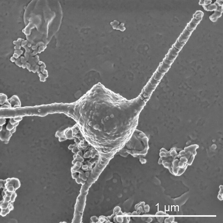 microbe, Microbes, This strange microbe may mark one of life's great leaps