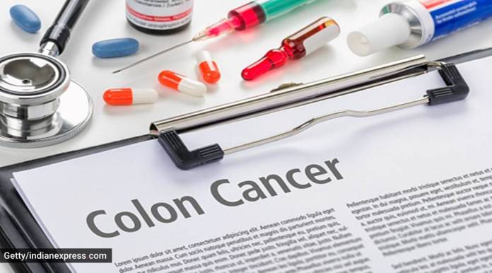 Colon most cancers: When should you get yourself screened?