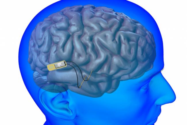 La Darpa entend tester une interface neuronale pour améliorer la communication soldat machine. (Crédit D.R.)