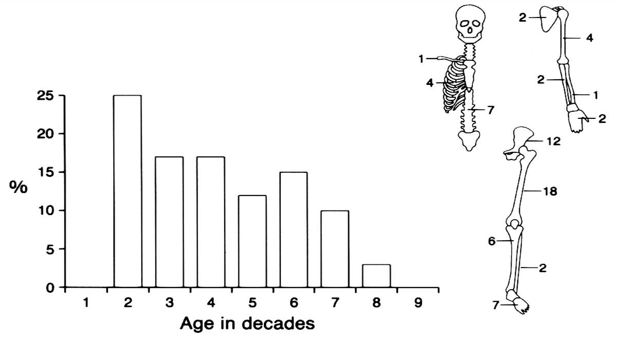 Epithelioid Hemangioendothelioma of Bone : The American