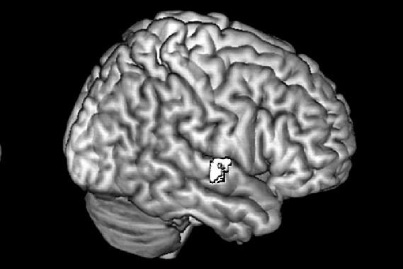 Des millions de connexions cérébrales en 3D
