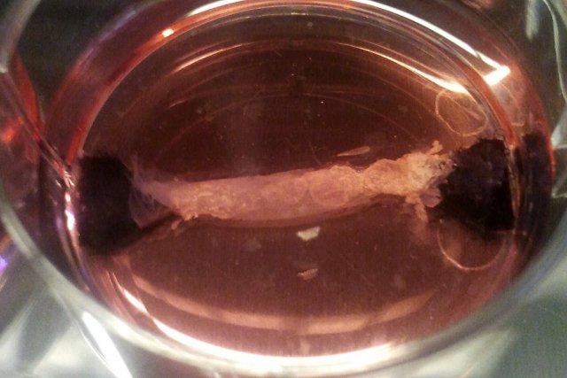 Des bandelettes de cellules musculaires.... (Photo: fournie par l'Université de Maastricht)