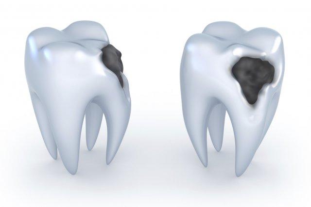 Pour le tiers des Québécois qui souffre d'hypersensibilité dentaire, une crème... (Photos.com)