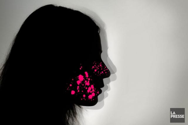 Au Canada, environ deux millions de personnes souffrent de rosacée, une... (ILLUSTRATION LA PRESSE)