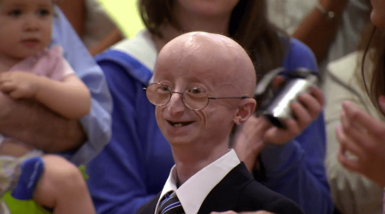 Teen With Progeria Sam Berns Dies Parents Continue Search For Answers To Rare Genetic Disease