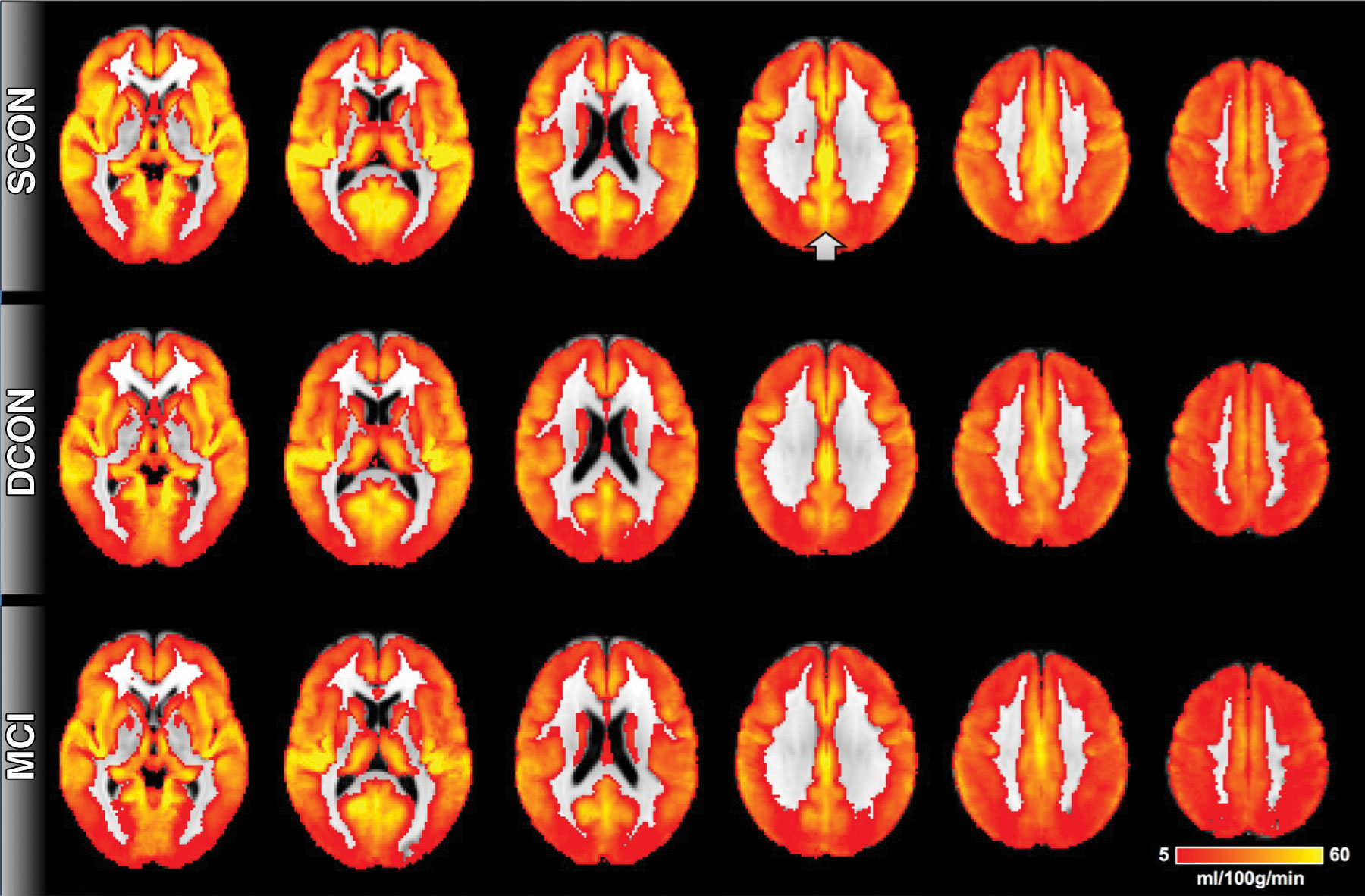 From MCI To Dementia Brain Scans Show Cognitive Decline
