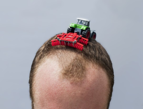 Hair Loss Cure Step Closer Reality; Scientists Grow