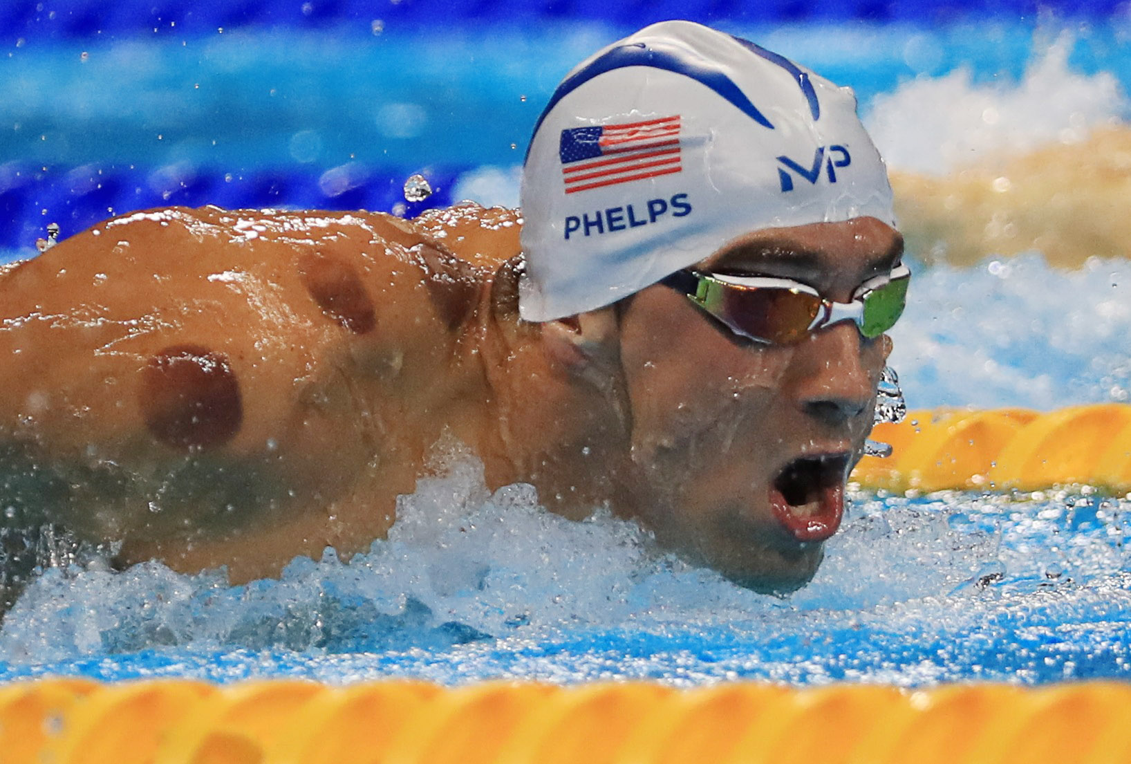 Cupping Therapy Benefits Explained After Michael Phelps