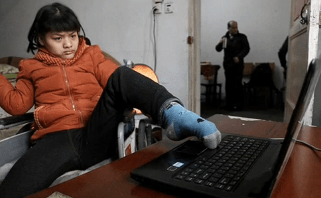 Hu Huiyuan Chinese Woman With Cerebral Palsy Does