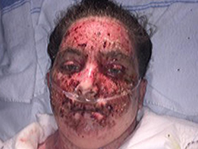 Eczema Treatment Gone Wrong Woman Burns 98 Of Body After
