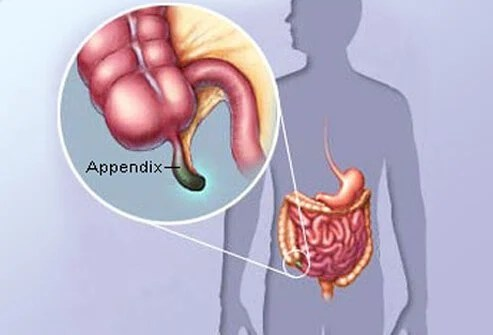 Pandemic Causing Dangerous Delays in Care When Appendicitis Strikes Kids 2