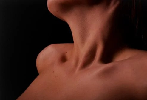 Could Too Much Light at Night Raise Your Odds for Thyroid Cancer? 2