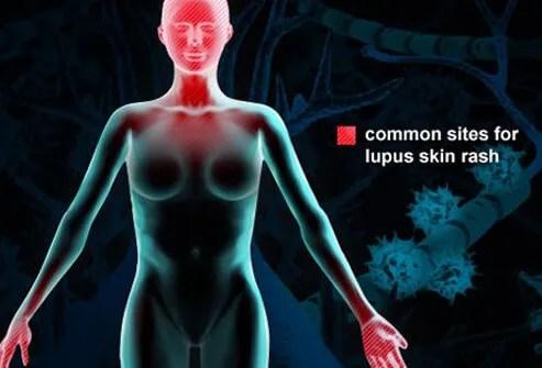 COVID-19 Ills No Greater for Those With Lupus, Rheumatoid Arthritis 2
