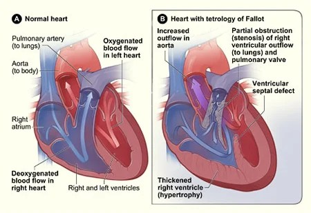 interior heart diagram wiring for 7 way blade plug congenital defects get facts on types and causes picture of a cross section normal with tetralogy