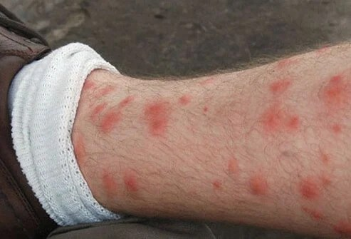 Itchy red welts from chigger bites on a man's leg.