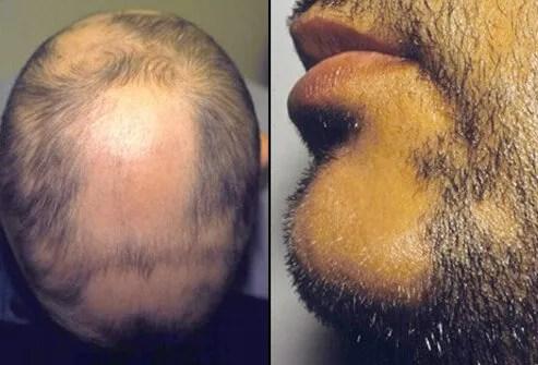 Alopecia Areata Picture Image on MedicineNet.com