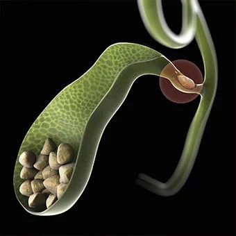 Bile ducts can become blocked, causing pain symptoms due to gallstones.