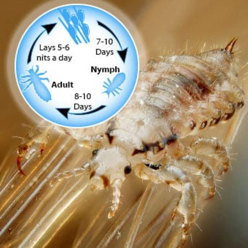 EASIEST WAY TO GET RID OF HEAD LICE